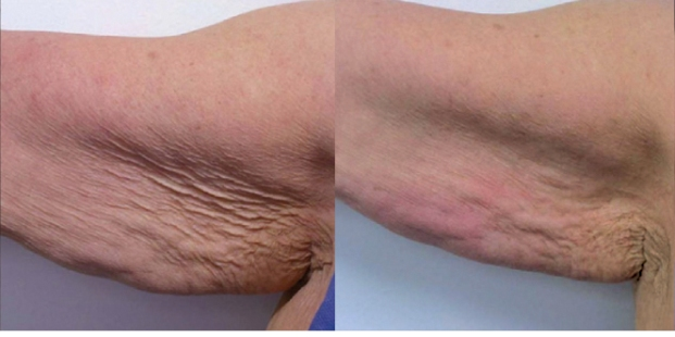 Accent skin tightening and cellulite reduction - arms before and after photos