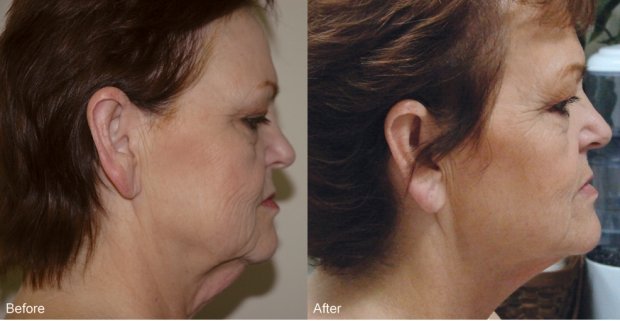 Accent skin tightening and cellulite reduction before and after photos