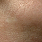 Laser Removal Chin Hair After